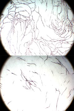 In vitro angiogenesis: Top: Stimulated tubule growth; Bottom: Inhibited