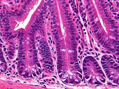H&E staining of normal crypts of the small intestine