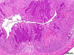 H&E staining of severe TNBS-induced diseased colon